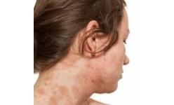 Eczema (18)