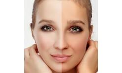 Hyperpigmentation (51)